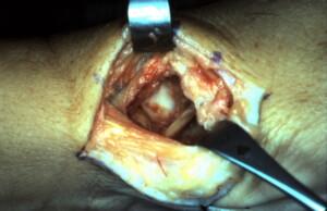 Trapezium Arthroplasty