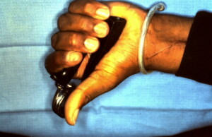 Revascularization Index Finger