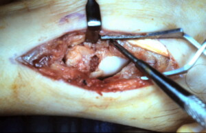 Scaphoid Bone Grafting