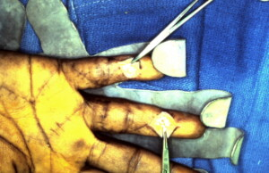 Staged Tendon Reconstruction